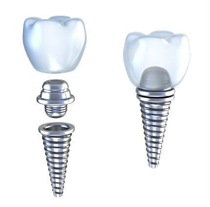 Dental Implants | Dental Surgery | Marion IL