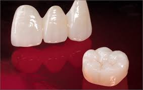 Dental Crowns | Dentists | Marion IL